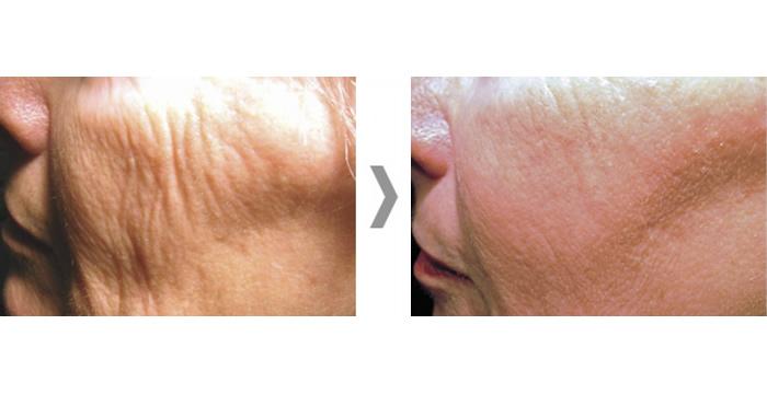 Skin Rejuvenation Harrogate