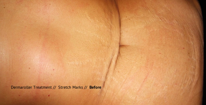 dermeroller-stretch-marks-before